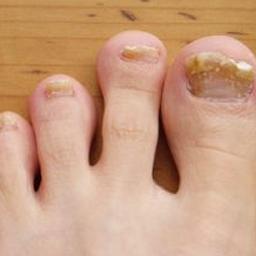 diagnosis nail condition